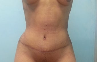 22 year old female treated with Tummy Tuck after 1286686