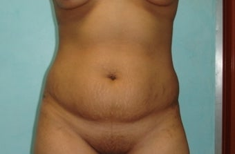 22 year old female treated with Tummy Tuck before 1286686