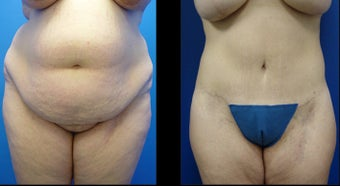 Abdominoplasty (Tummy Tuck) before 496195