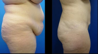 Abdominoplasty (Tummy Tuck) after 496195