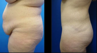 Abdominoplasty (Tummy Tuck) 496195