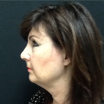 65-74 year old woman treated with Kybella after 3524352