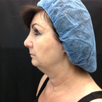 65-74 year old woman treated with Kybella before 3524352