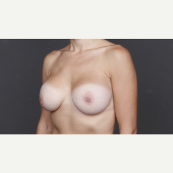 25-34 year old woman treated with Breast Implants after 2993241