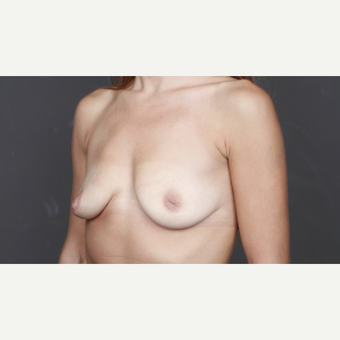 25-34 year old woman treated with Breast Implants before 2993241