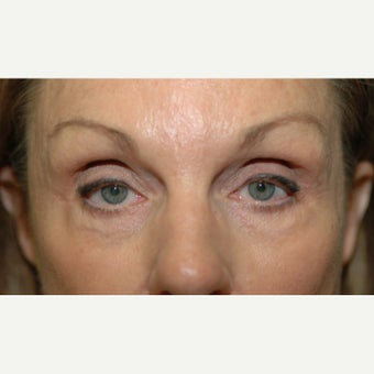 65-74 year old woman treated with Ptosis Surgery and Fat grafting to upper eyelids before 1662112