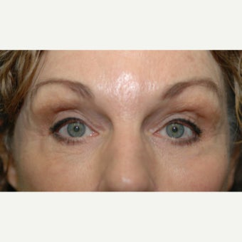 65-74 year old woman treated with Ptosis Surgery and Fat grafting to upper eyelids after 1662112