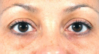 Filler for Under-eye circles (tear troughs) before 936982