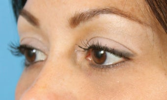 Filler for Under-eye circles (tear troughs) 936982