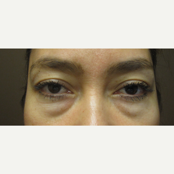 35-44 year old woman treated with Eye Bags Treatment before 3253309