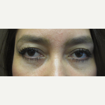 35-44 year old woman treated with Eye Bags Treatment after 3253309