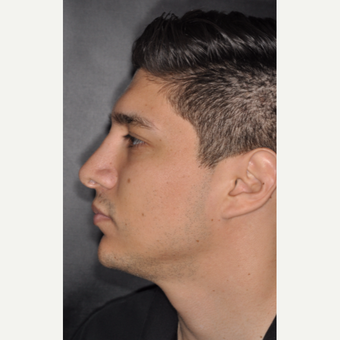 25-34 year old man treated with Rhinoplasty 3 years post-op after 3814046