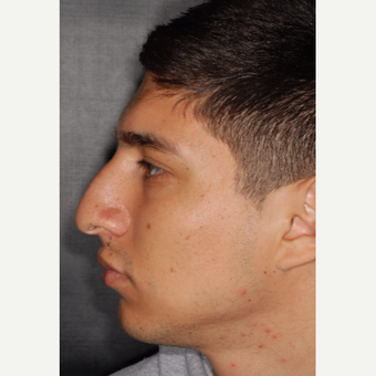 25-34 year old man treated with Rhinoplasty 3 years post-op before 3814046