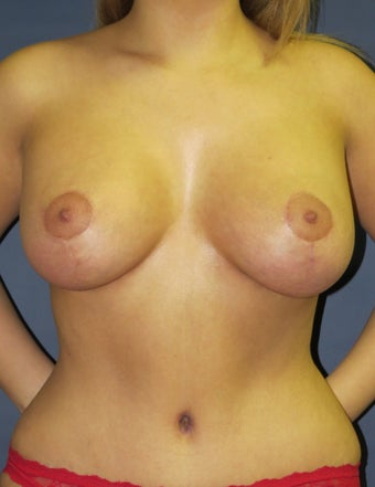 Breast Lift with Implants after 1236302