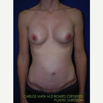 Breast Augmentation after 3744198