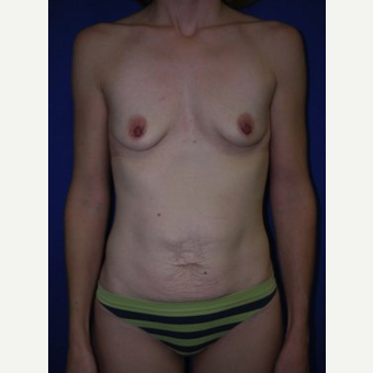 Breast Augmentation before 3744198