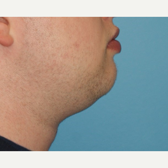25-34 year old man treated with Chin Liposuction before 3638171