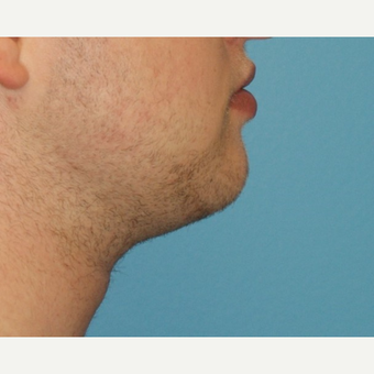 25-34 year old man treated with Chin Liposuction after 3638171