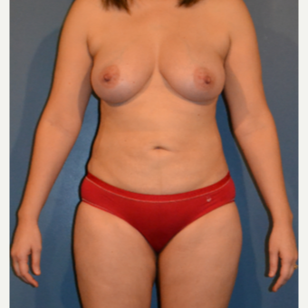 35-44 year old woman treated with Breast Fat Transfer after 3408396