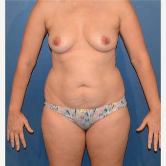 35-44 year old woman treated with Breast Fat Transfer before 3408396