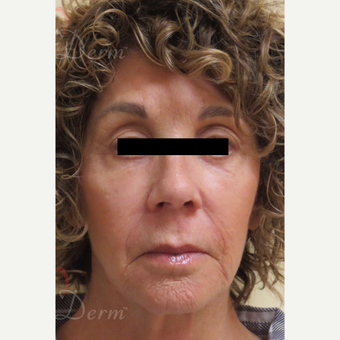 65-74 year old woman treated with Fractional Laser after 3607981