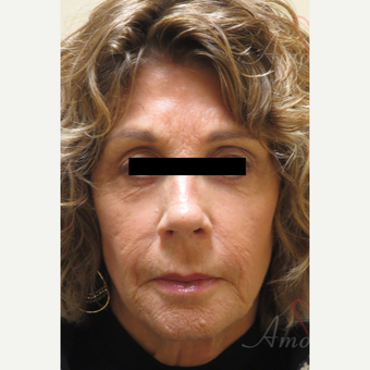 65-74 year old woman treated with Fractional Laser before 3607981