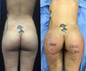 Woman treated with Brazilian Butt Lift before 2656102
