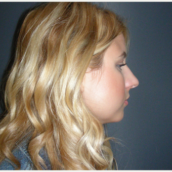 18-24 year old woman treated with Rhinoplasty before 3686926