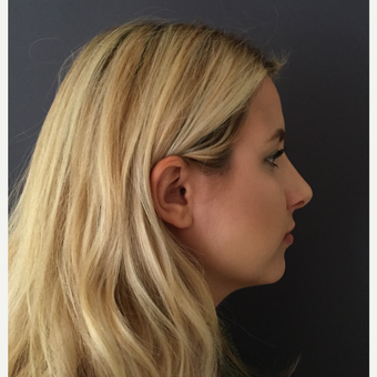 18-24 year old woman treated with Rhinoplasty after 3686926