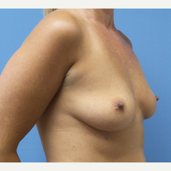 35-44 year old woman treated with Breast Augmentation before 3685255