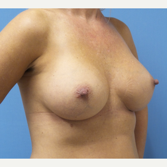 35-44 year old woman treated with Breast Augmentation after 3685255