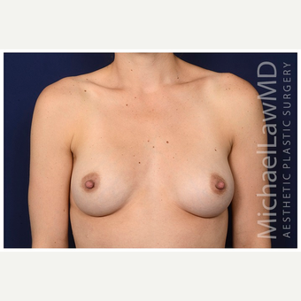 25-34 year old woman treated with Breast Implants after 3245986