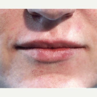 35 year old woman treated with Juvederm