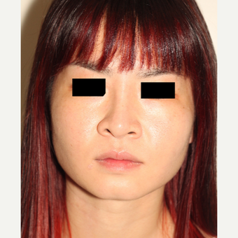 18-24 year old woman treated with Revision Rhinoplasty after 3506669