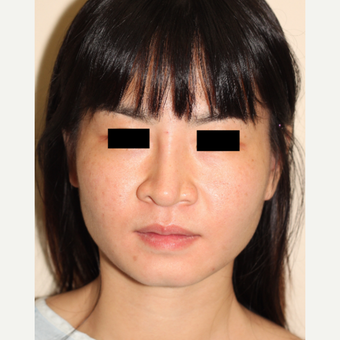 18-24 year old woman treated with Revision Rhinoplasty before 3506669
