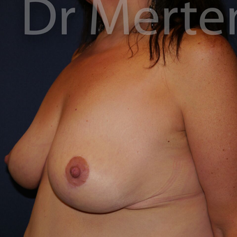 Breast Reduction after 3681313
