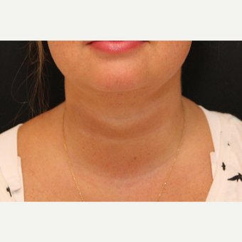 Chin Liposuction after 3611217