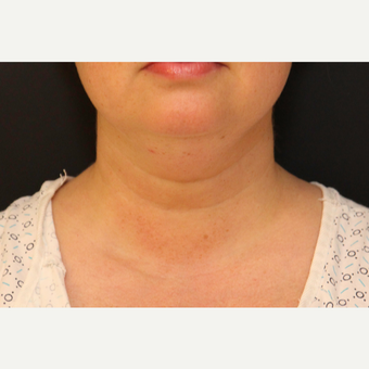 Chin Liposuction before 3611217