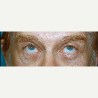 55-64 year old man treated with Eye Bags Treatment