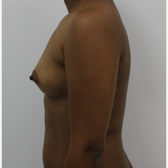 35-44 year old woman treated with Breast Augmentation before 3060247