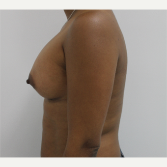 35-44 year old woman treated with Breast Augmentation after 3060247