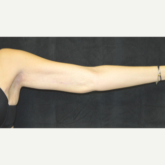 25-34 year old woman treated with Arm Lift after 3181615