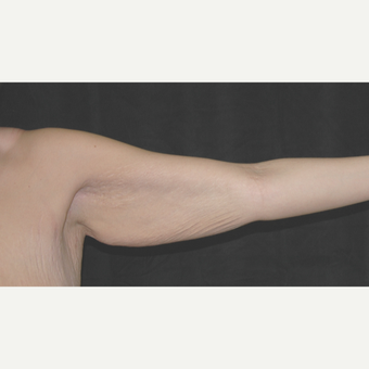 25-34 year old woman treated with Arm Lift before 3181615