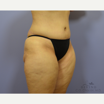 35-44 year old woman treated with Tummy Tuck after 3421998