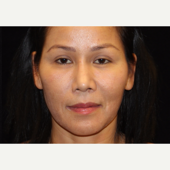 35-44 year old woman treated with Liquid Facelift after 3502992