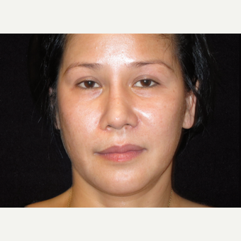 35-44 year old woman treated with Liquid Facelift before 3502992