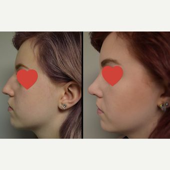 17 or under year old woman treated with Rhinoplasty before 3837358