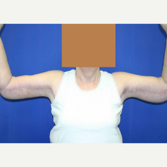 Arm Lift after Weight Loss after 3141039
