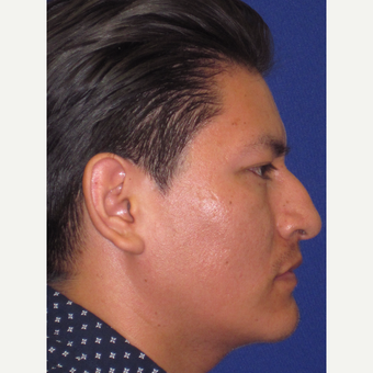 Rhinoplasty before 3831416