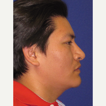Rhinoplasty after 3831416